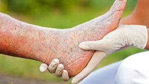 Critical Limb Ischemia Treatment