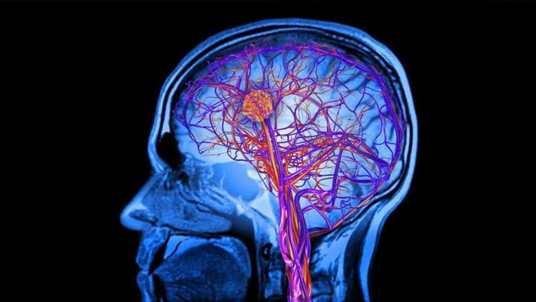 Neurodisorder