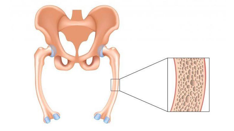 Stem Cell Treatment Osteomalacia