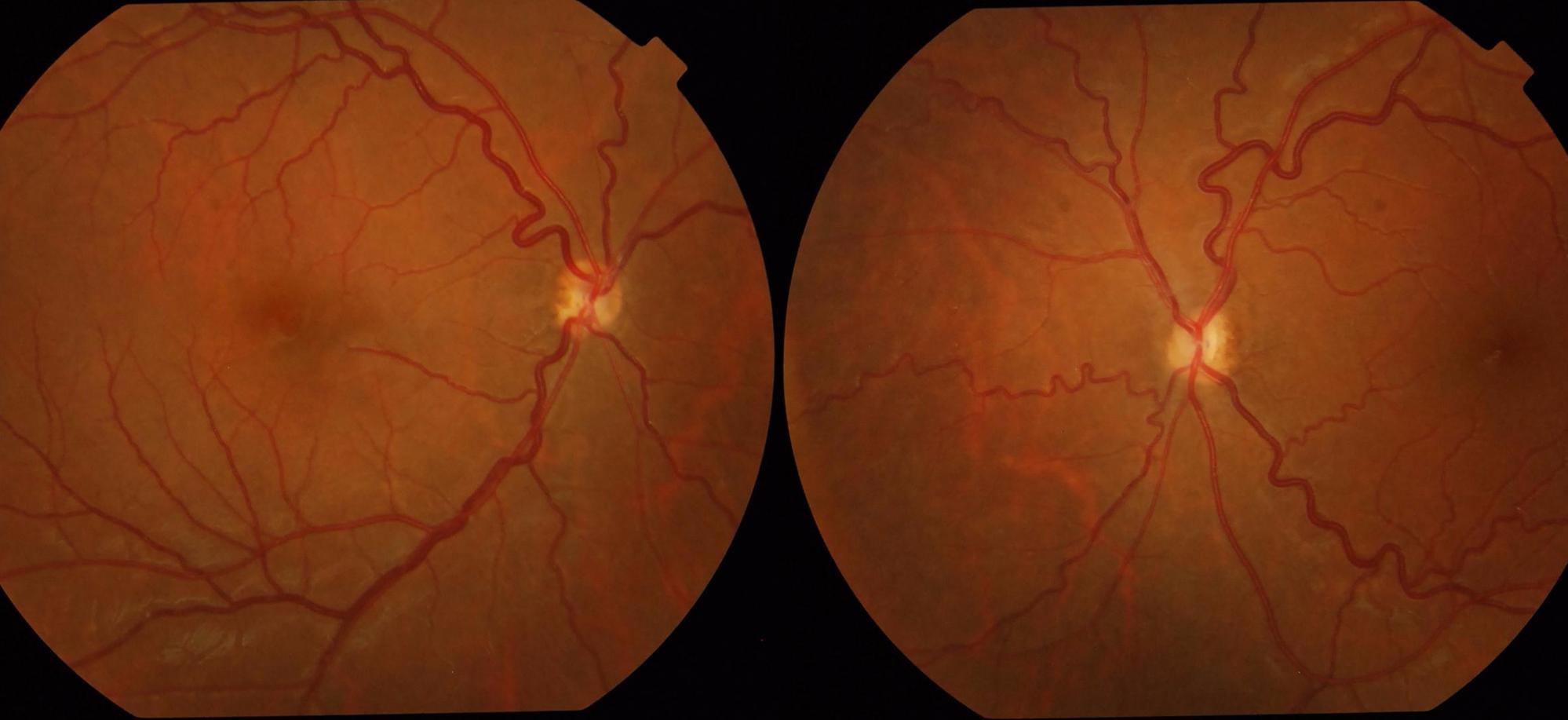 Optic nerve hypoplasia