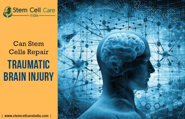 Can Stem Cells Repair Traumatic Brain Injury