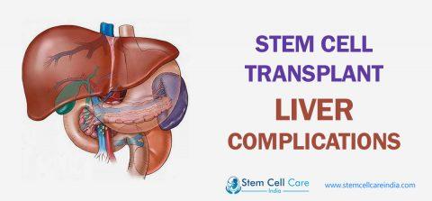 Stem Cell Transplant Liver Complications