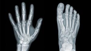 Osteopenia-1
