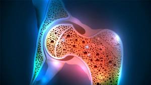 Osteoporosis-1