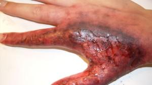 Skin-Burn