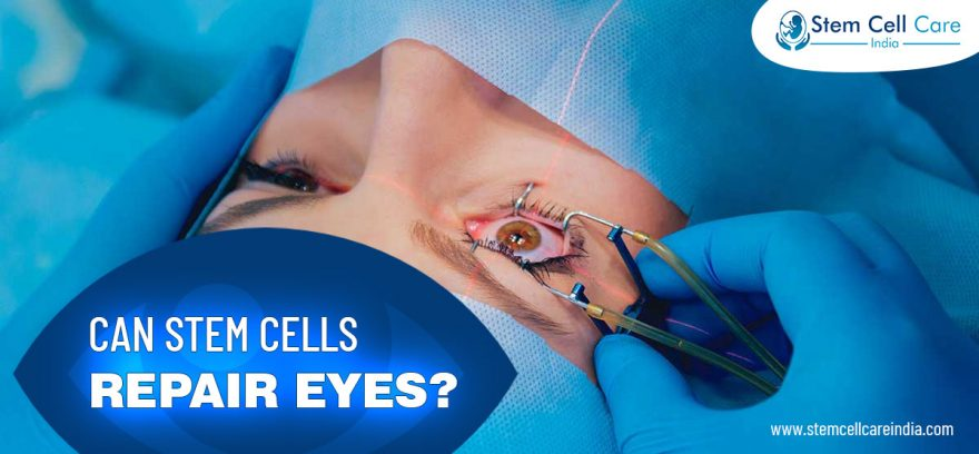 Can Stem Cells Repair Eyes?